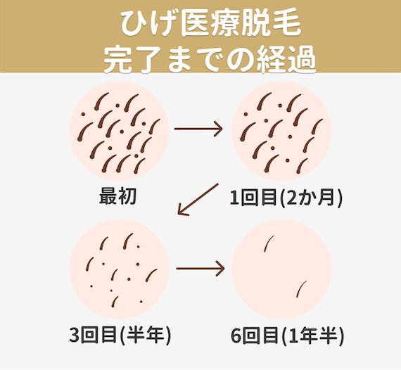 女性ひげ脱毛‗回数と期間