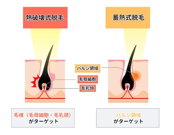 蓄熱式と熱破壊式の違い